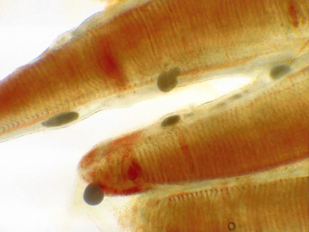 圖1、石斑魚鰓部有海水白點蟲感染(40X)。